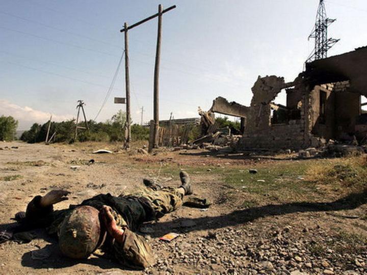 Почему граждане Армении, «болеющие» менингитом мизинца, отказываются служить в «непобедимой» армии? - ФОТО - ВИДЕО
