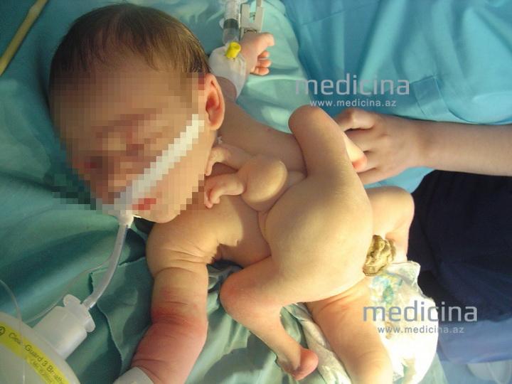 Минздрав о рождении в Баку многорукого и многоногого младенца - ФОТО