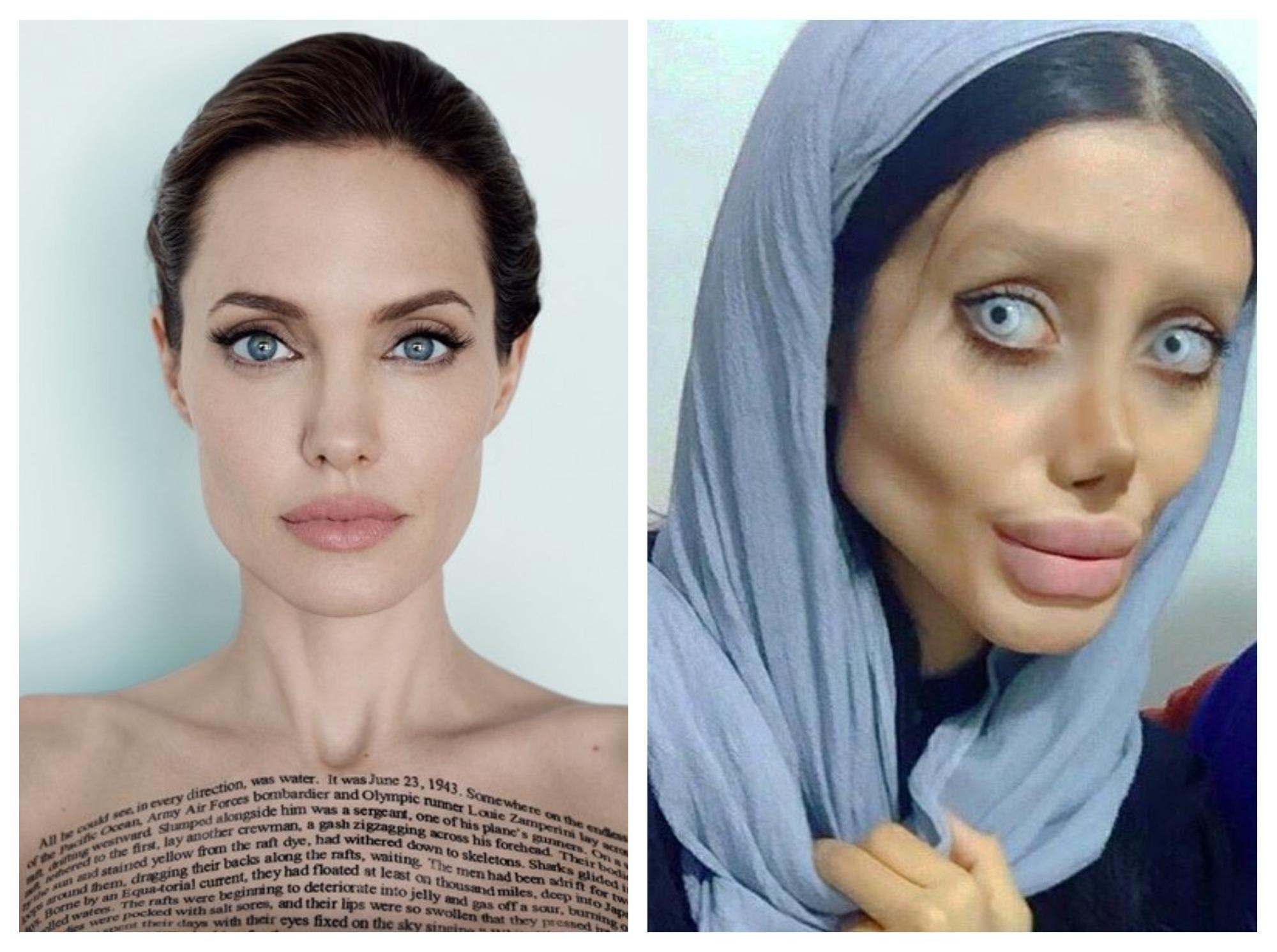 Соцсети в шоке: иранка сделала 50 операций, чтобы стать похожей на Анджелину Джоли – ФОТО