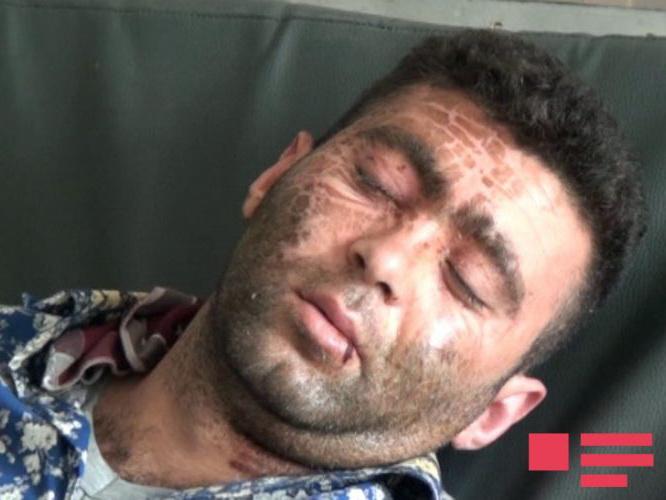 Полиция о мужчине, облитом кипятком: «Он не грабитель, а жертва» - ВИДЕО