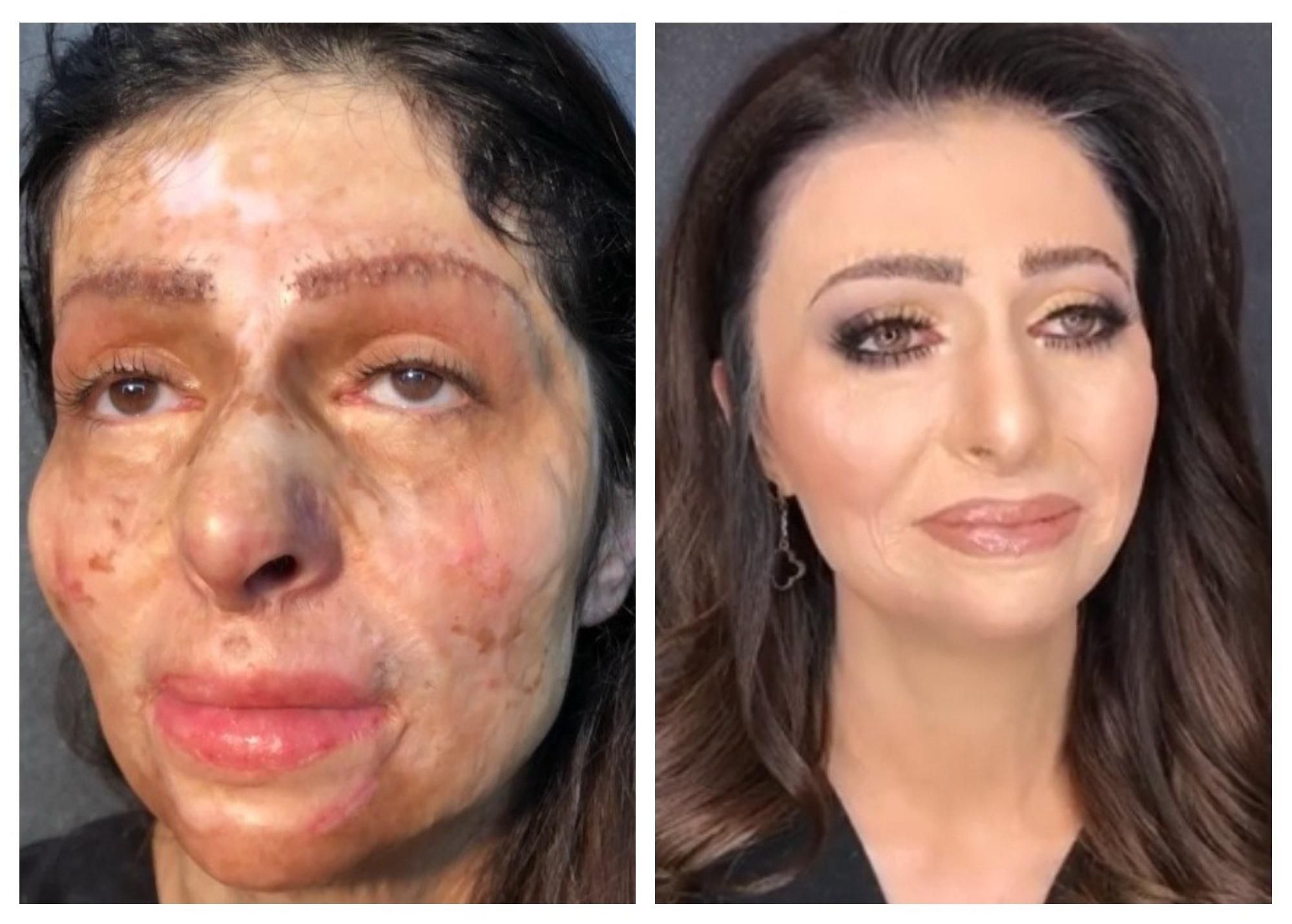 Невероятный поворот в судьбе азербайджанки с обожженным лицом, растрогавшей соцсети – ВИДЕО