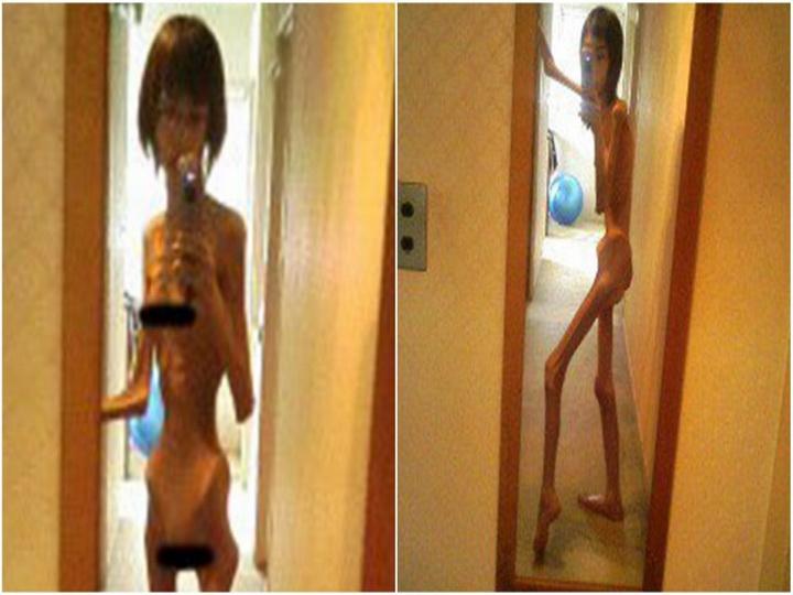 Японка, которая весила 17 килограммов, показала свои фото