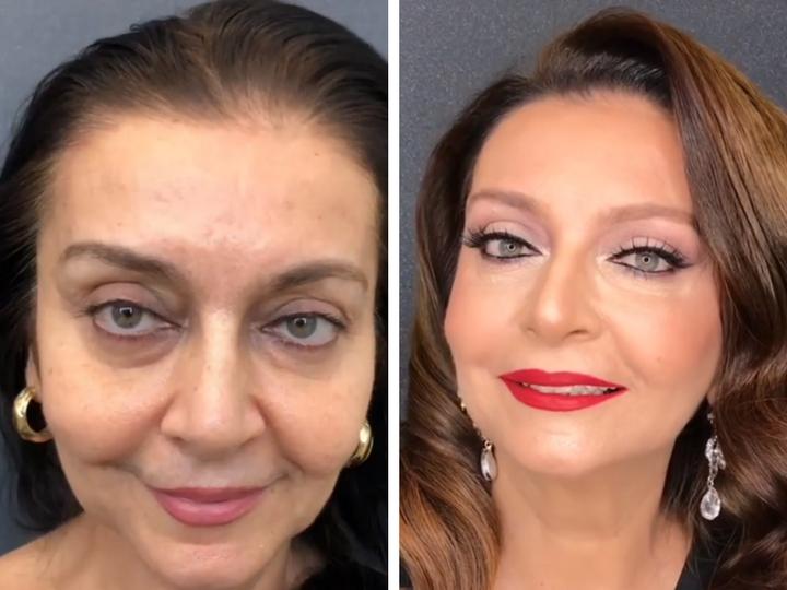 Гамида Омарова приняла участие в проекте Анара Агакишиева «Before/after» - ВИДЕО