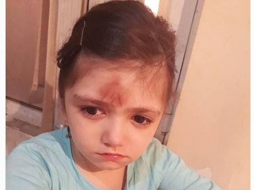 Заявление Управобразования Баку по факту избиения школьницы учительницей - ФОТО - ВИДЕО
