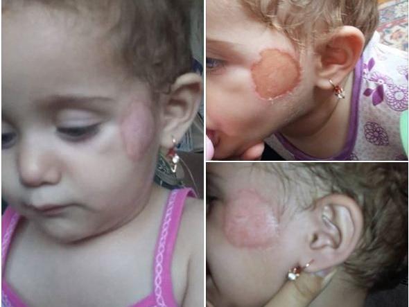 За укус ребенка уволили двух сотрудников гянджинского детсада - ФОТО