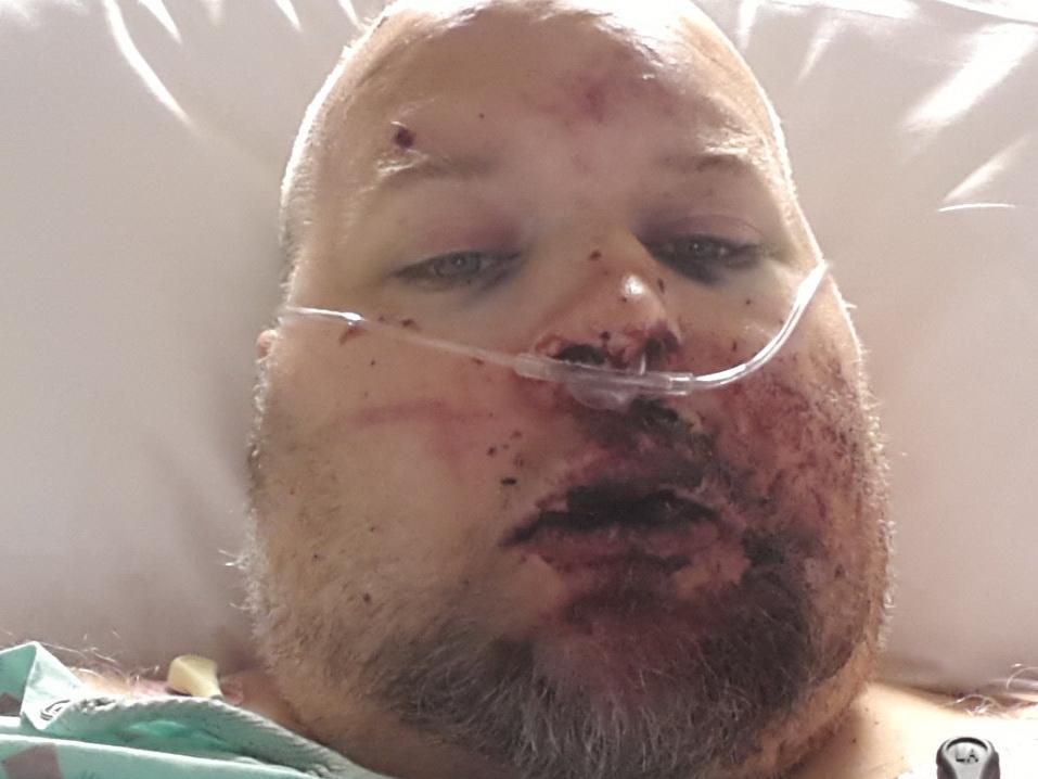 Наркоман умер из-за того, что его горло сгнило в результате употребления кокаина - ФОТО