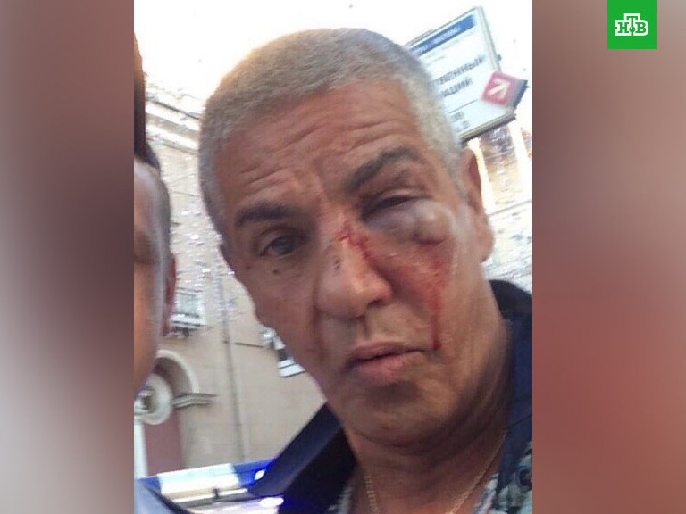 В Сети появился снимок жестоко избитого в Москве актера Сэми Насери – ФОТО