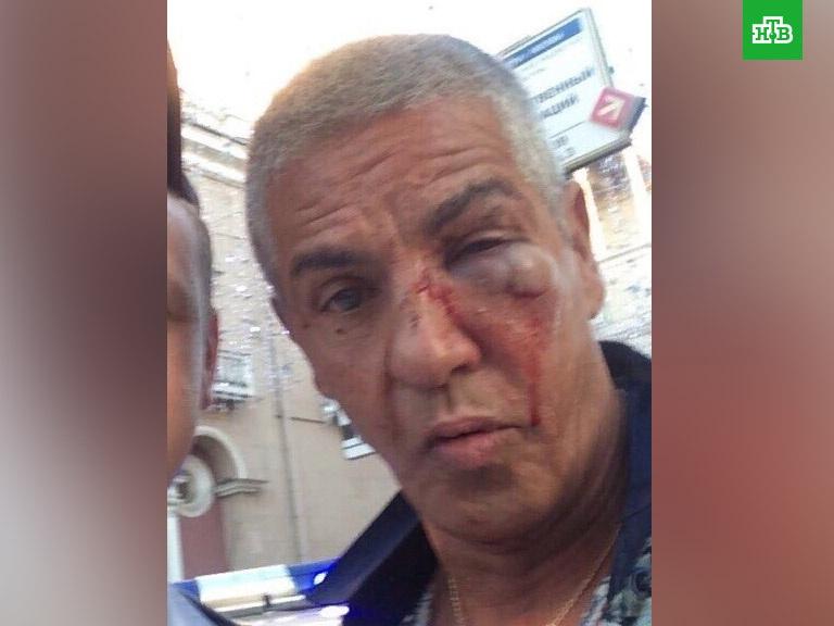 Звезда фильма «Такси» Сэми Насери подробно рассказал, как его избивали в Москве - ФОТО