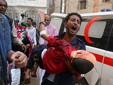 В Йемене погибло 30 детей в результате обстрела школьного автобуса