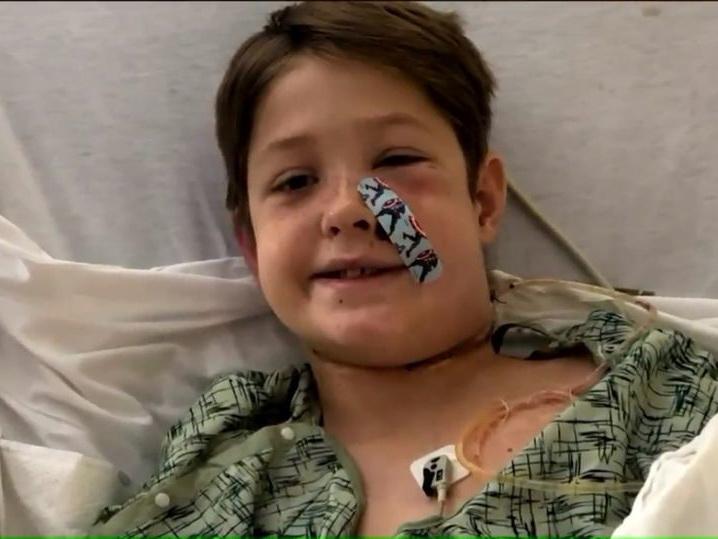 Врачи спасли 10-летнего мальчика, который упал с дерева головой на шампур - ФОТО