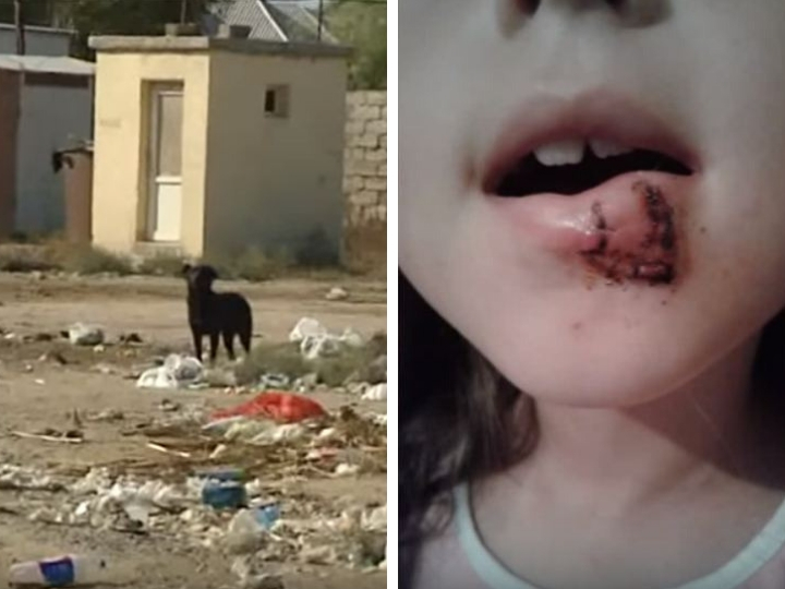 В Баку собаки напали на детей – ВИДЕО