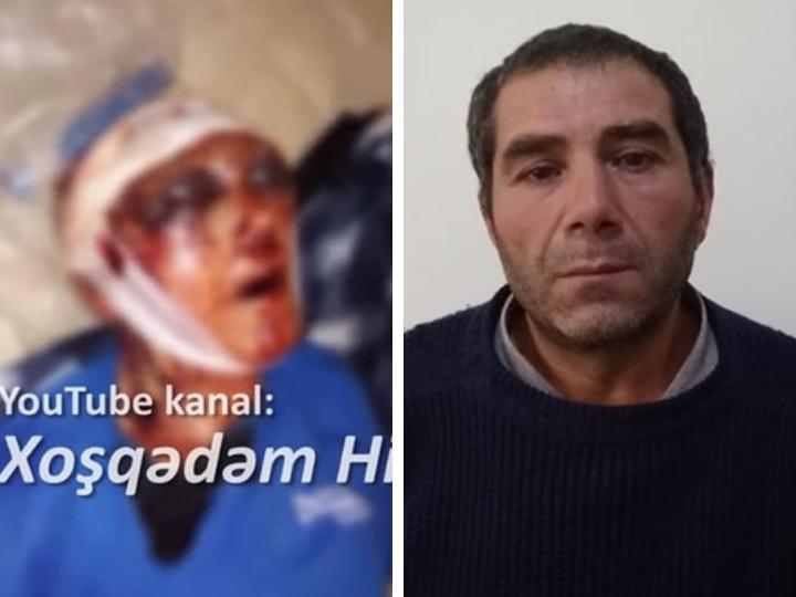 В Азербайджане сын зверски избил пожилых родителей – ФОТО