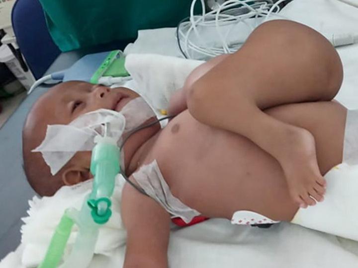 У семимесячного ребенка удалили близнеца-паразита - ФОТО