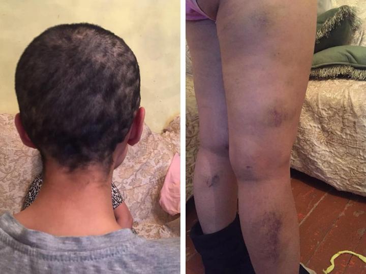 Муж бил ножом, тушил об нее сигареты: Жуткие кадры истязаний женщины, которой обрили голову – ФОТО – ВИДЕО