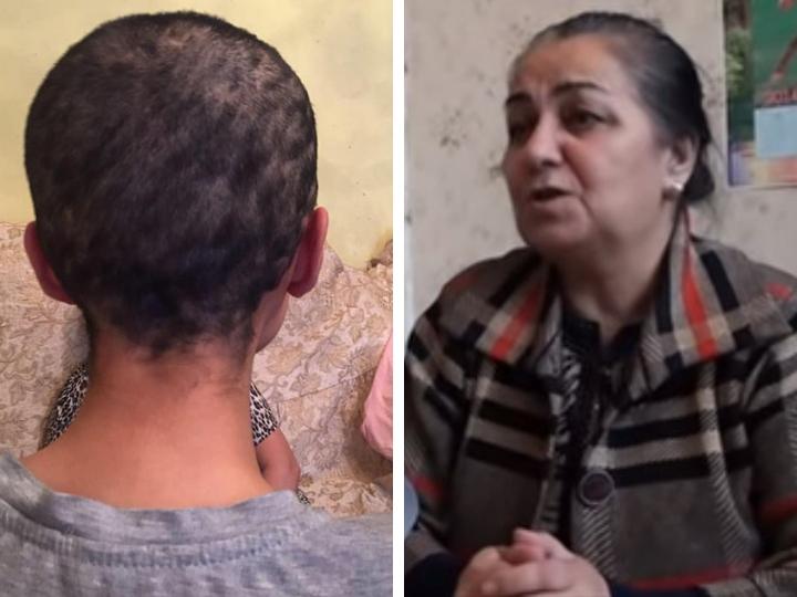 Мать женщины, которой обрили голову: «Когда мой муж узнал о том, что сделали с дочкой, у него случился инфаркт» - ФОТО – ВИДЕО