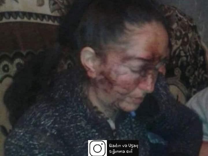 В Азербайджане муж жестоко избил жену – ФОТО