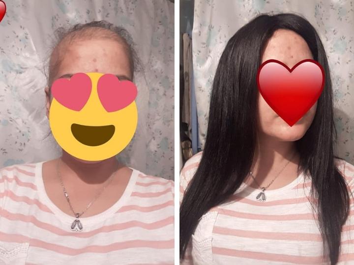 «Saçım saçın olsun»: Азербайджанские женщины жертвуют своими волосами для больных онкологией – ФОТО