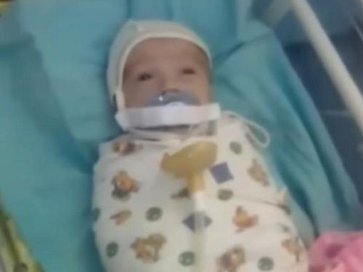Главврача перинатального центра уволили из-за заклеенного младенцу рта - ВИДЕО