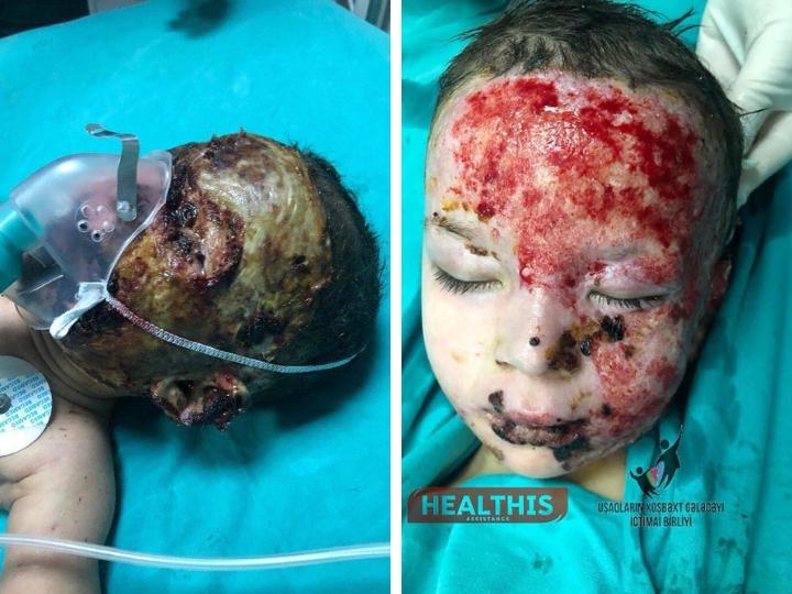 «Пока мы не вылечим Анжелу полностью, я никому ее не отдам!»: малышке провели вторую операцию – ФОТО