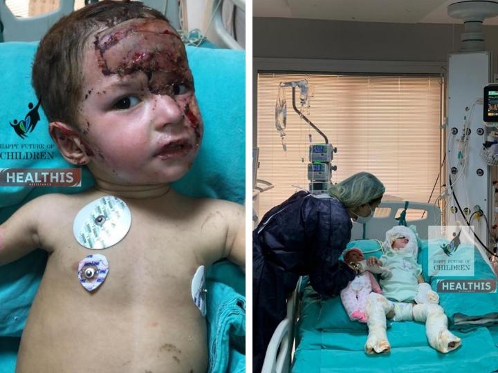Маленькая Анжела прошла через три операции. Ей предстоит еще пятнадцать – ФОТО – ВИДЕО