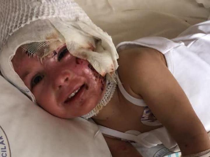 Малышку Анжелу перевели из реанимации в палату – ВИДЕО