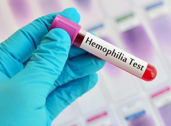 Bu gün Dünya Hemofiliya Günüdür