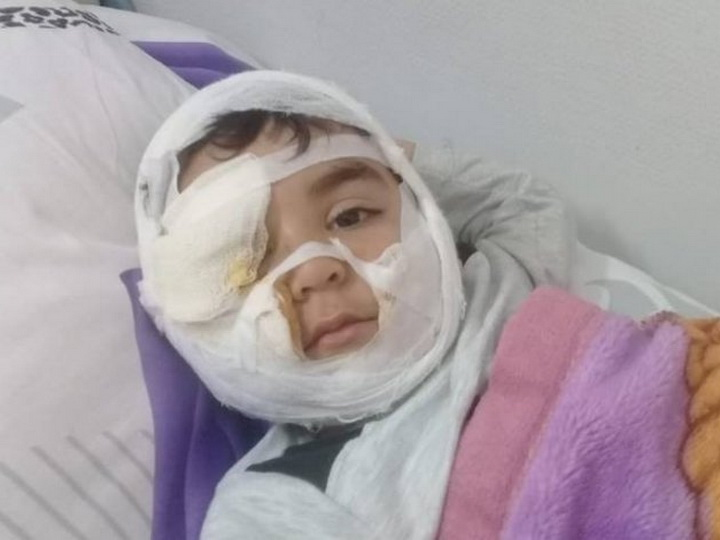 Представители Фонда Гейдара Алиева посетили мальчика, на которого напала собака