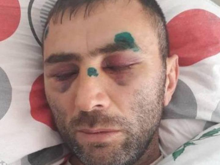 В Баку верующие зверски избили мужчину за отказ его жены носить хиджаб - ФОТО - ВИДЕО