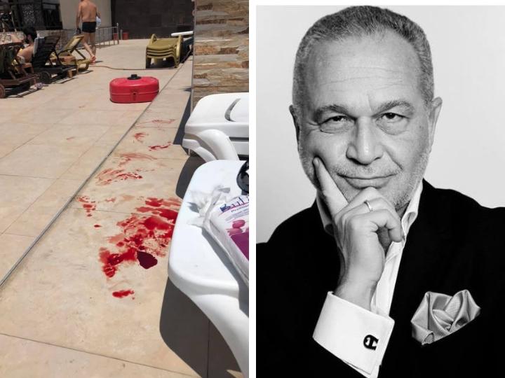 Азер Гариб об инциденте в ресторане на Шихово: «Мой друг был весь в крови, а официант вместо помощи быстро потребовал с нас плату за чай» - ФОТОФАКТ