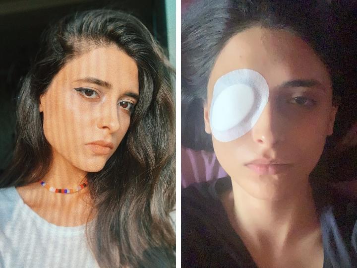 Фидан Мамедова: «Я пошла на эпиляцию и чуть не лишилась глаза в этой клинике» - ФОТО