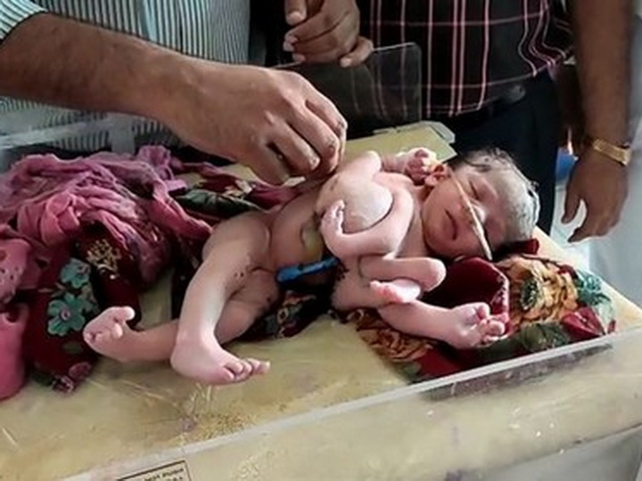Страшная аномалия: в Индии родилась девочка с 4 ногами и 3 руками