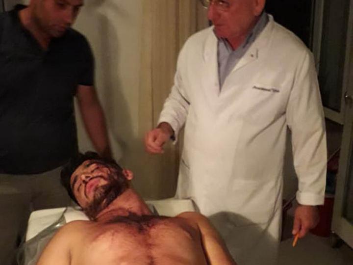 В Кюрдемире произошла массовая драка, есть пострадавшие - ФОТО
