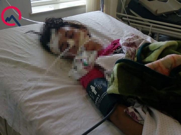 В Азербайджане скончалась девушка, которую водитель сбил и бросил на дороге - ФОТО