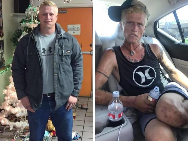 Мать выложила жуткое фото, показав, что наркотики сделали с сыном за 7 месяцев – ФОТО