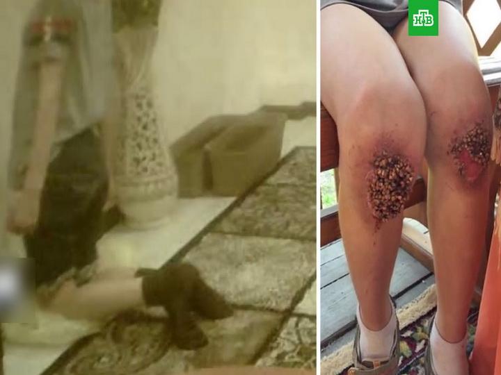 В России мальчику из-за пыток в семье в ноги вросла гречка - ВИДЕО