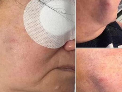 В Баку врач ударил пожилую пациентку, которую прооперировал? - ФОТО - ОФИЦИАЛЬНО