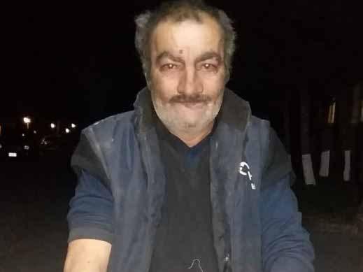 Пострадавший от нападения «волка» житель Баку: «Задушил и сжег» – ФОТО - ВИДЕО