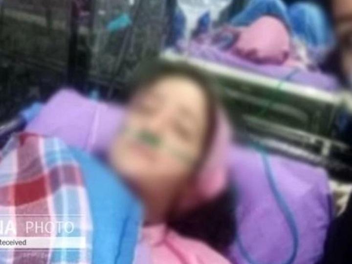 25 yaşlı tibb bacısı koronavirusdan öldü – İranda