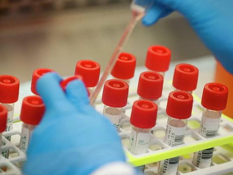 5 dəqiqəyə koronavirusu aşkar edən test hazırlanıb