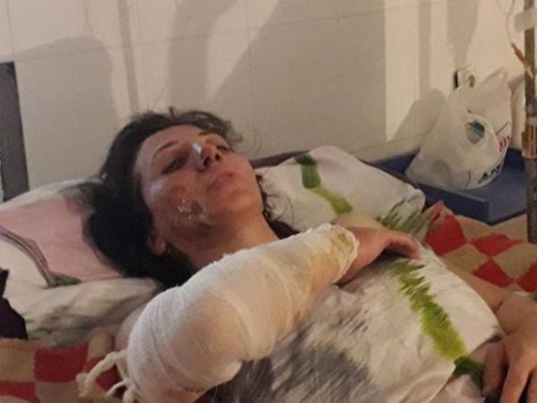 В Азербайджане мужчина пытался сжечь жену, подавшую на развод - ВИДЕО