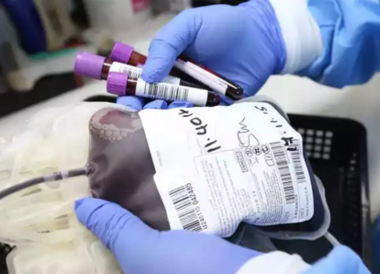 В Азербайджане больных коронавирусом начали лечить плазмой крови выздоровевших