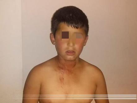 Госкомитет взял на контроль дело ребенка, которого отец пытался убить за отказ попрошайничать – ФОТО