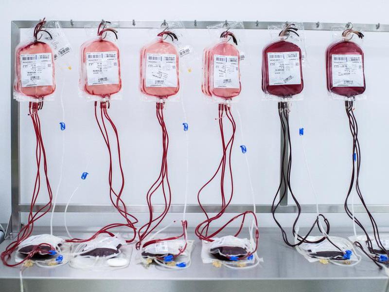 Минобороны Азербайджана: В банке крови имеется резерв всех групп крови