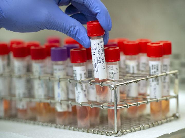 14 sentyabra olan koronavirus STATİSTİKASI: 76 yeni yoluxan, 104 sağalan, 2 ölən var