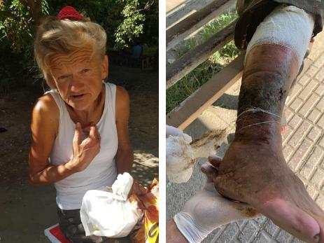 «Сестра выгнала ее на улицу…» Бездомная одинокая женщина в Баку нуждается в лечении – ФОТО – ВИДЕО