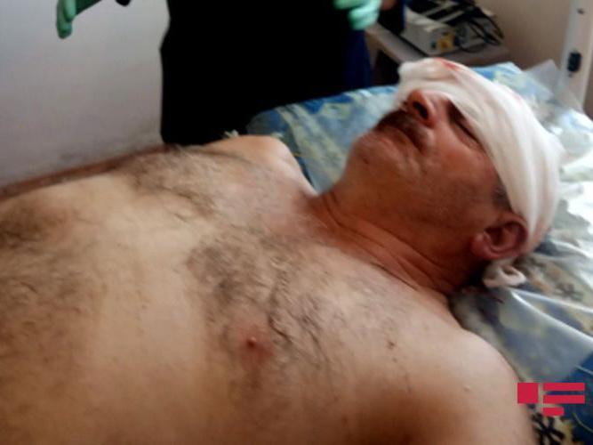В результате армянского артобстрела ранен житель азербайджанского села