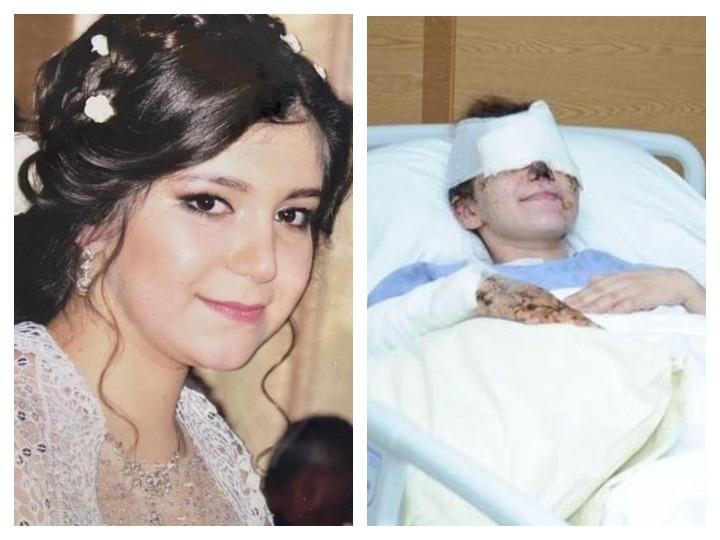26-летняя жительница Гянджи потеряла зрение в результате ракетного обстрела ВС Армении – ФОТО