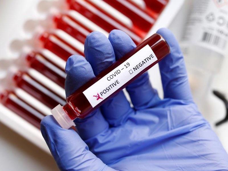 Ermənistanda son sutkada koronavirusdan 41 nəfər öldü