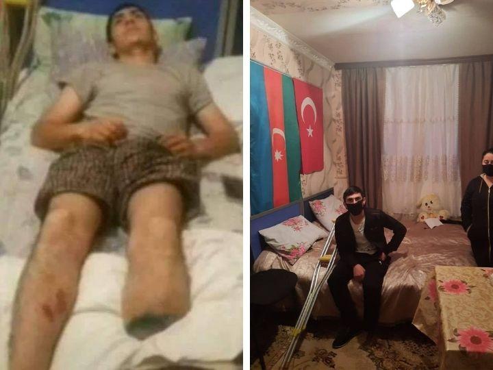 Минсоцтруда взяло под опеку раненого в Отечественной войне Кенана Мусаева – ФОТО