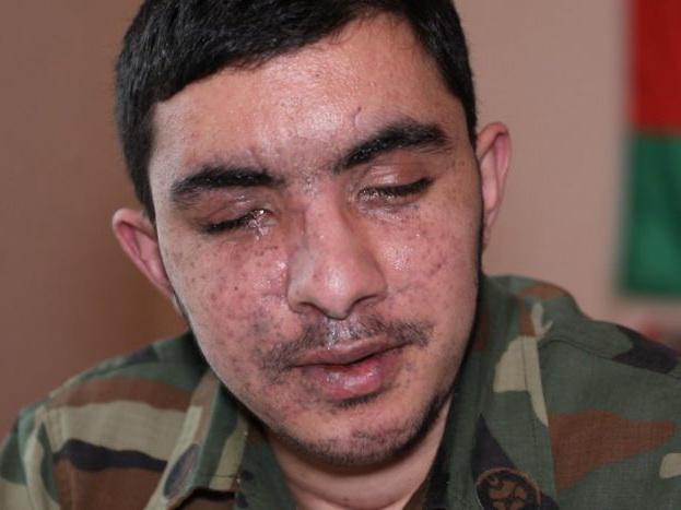 Репортаж о герое нашего времени. В ходе боев в Физулинском районе Амиль Алиев потерял оба глаза – ВИДЕО